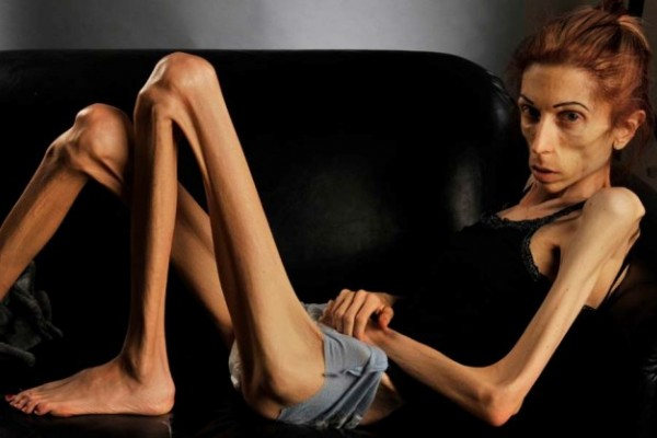 Theme interesting, Anorexic picture sex